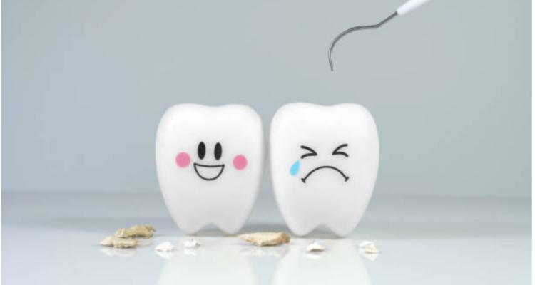 La carie dei denti…cosa c'è da sapere!